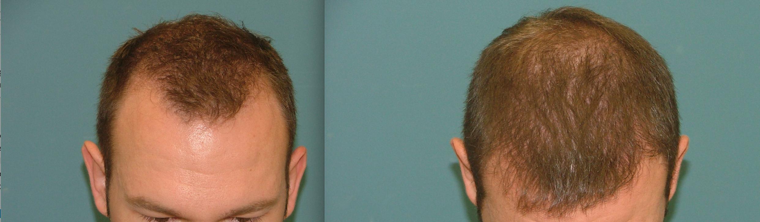 Estetigraft Hair Restoration and Transplantation