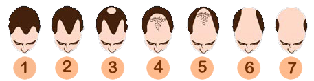 Baldness Scale - Estetigraft Hair Restoration and Transplantation