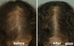 female hair loss Hair loss is a very common condition that affects most people at some time in their lives. Everyone loses hair. It is normal to lose about 50-100 hairs every day. If you notice bald patches or lots of thinning, you may be experiencing hair loss.