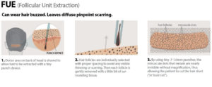 Folecule Unit Extraction at Estetigraft Hair Restoration Transplantation at Estetica Institute of the Palm Beaches