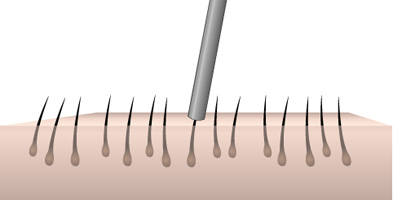 Folecule Unit Extraction at Estetigraft Hair Restoration Transplantation at Estetica Institute of the Palm Beaches