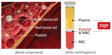 Platelet-Rich Plasma PRP