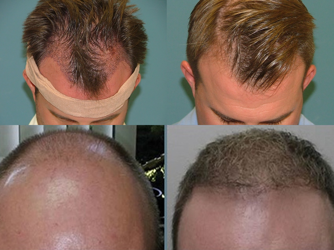 Estetigraft hair restoration
