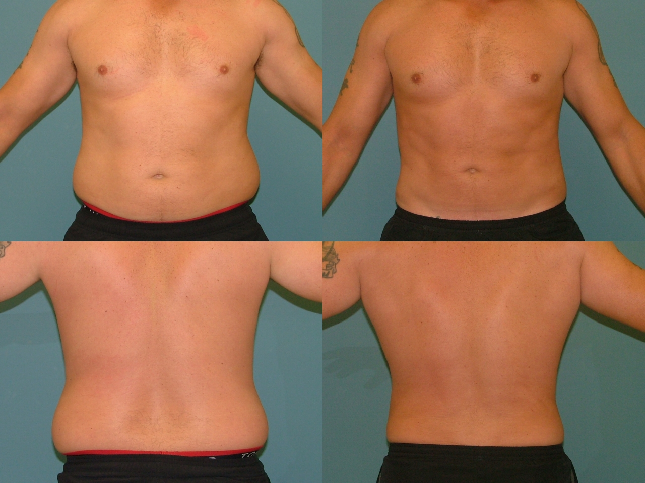 Fat Reduction for Men
